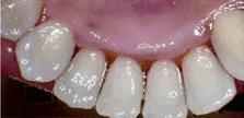 general cosmetic dentistry facial esthetics perfect smile tulsa ok after tartar build up image