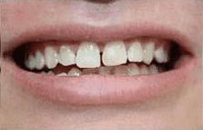 general cosmetic dentistry facial esthetics perfect smile tulsa ok before Lumineers gallery image
