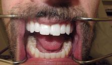 general cosmetic dentistry facial esthetics perfect smile tulsa ok before Veeners smile gallery image