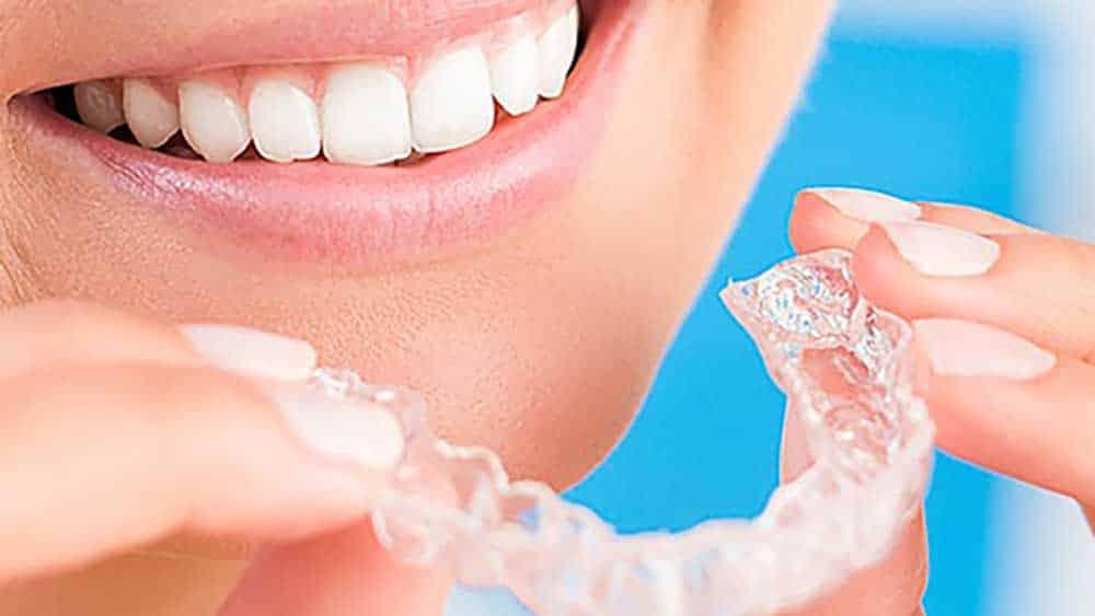 Teeth Whitening Perfect Smile Tulsa General Cosmetic